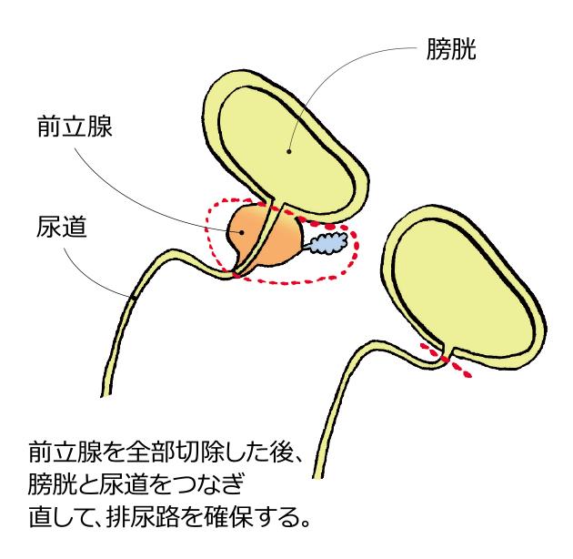 前立腺 が ん 治療 法